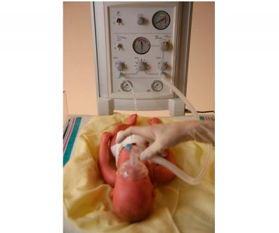 Pneumatic ventilator / resuscitation / infant