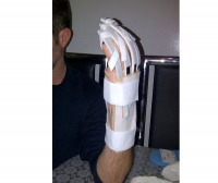Finger orthosis / finger flexion