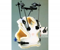 PMT® Halo Cervical Traction System 1223