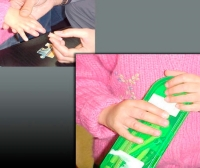 Finger external cosmetic prosthesis / pediatric